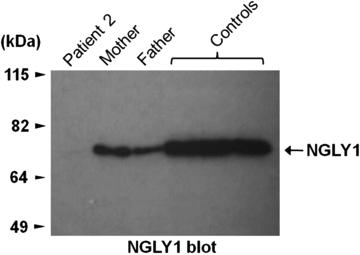 N-Glykanase-1-Menge